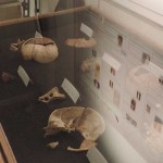 Display of human bones found underneath the Franklin House in London